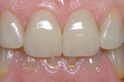 Dentisteria: Restaurações de dentes anteriores (1º módulo, Lisboa)
