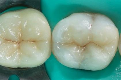 Dentisteria: Restauração de dentes posteriores (2º módulo, Lisboa)