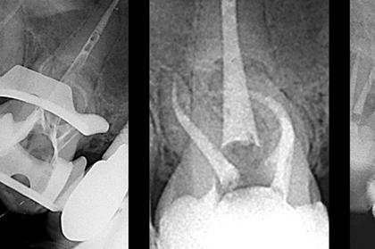 Endodontia: Novos materiais e técnicas em endodontia (2º módulo, Porto)
