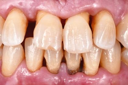 Periodontologia: Tratamento não cirúrgico na doença periodontal (1º módulo, Porto)