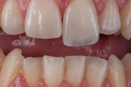 Dentisteria: Reabilitação adesiva de dentes anteriores e posteriores - a via digital (3º módulo, Lisboa)