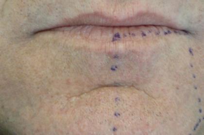 Complicações da exodontia dos terceiros molares inclusos