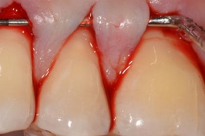 Periodontologia: Cirurgia mucogengival e regenerativa (3º módulo, Porto)