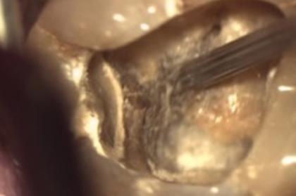 Endodontia: novos materiais e técnicas de instrumentação