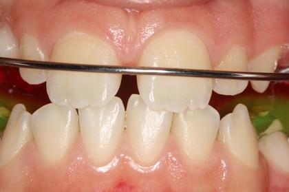 Tratamento ortopédico das classes II esqueléticas