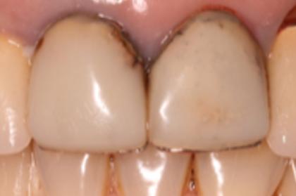 Reabilitação da zona estética na maxila: implantes ou prótese convencional