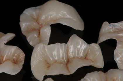Dentisteria: Restaurações semi-diretas com resinas compostas (3º módulo, Porto)