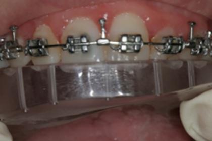 Ortodontia: Tratamento ortodôntico-cirúrgico-ortognático (3º módulo, Lisboa)
