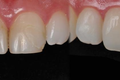 Dentisteria estética, novas técnicas e materiais para o dia-a-dia