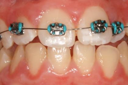 Assistente dentário: Curso de ortodontia e implantologia (Viseu)