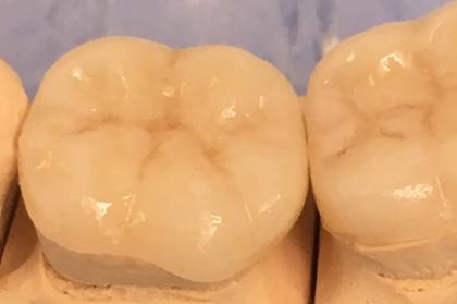 Dentisteria: Restaurações diretas e indiretas em dentes posteriores