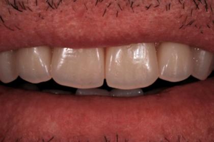 Reabilitação oral: Perspetivas na reabilitação estética oro-facial
