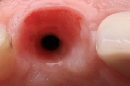 Implantologia: Técnicas de regeneração óssea vertical e horizontal: como, quando e porquê