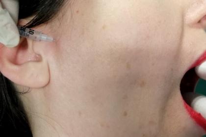 Terapêuticas da disfunção temporomandibular: novas perspetivas (2º módulo, Streaming)
