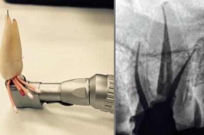 Endodontia: Obturação em endodontia (3º módulo, streaming)