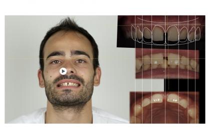 Sorriso digital - da tecnologia ao conhecimento e reabilitação intraoral
