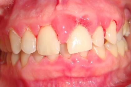 Periodontologia: Tratamento não cirúrgico na doença periodontal (1º módulo, Lisboa)