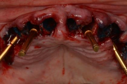 Implantologia: Colocação de implantes em zonas de limitação anatómica