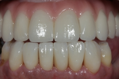 Dentisteria: Facetas dentárias com recurso ao sistema CAD-CAM