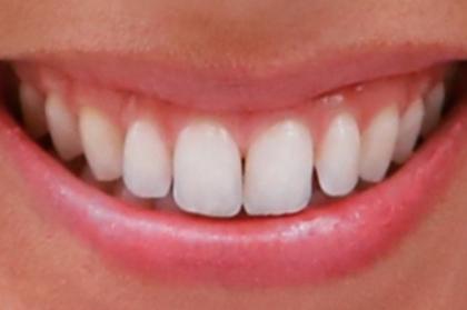 Ortodontia: Determinantes estéticos em ortodontia