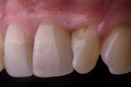 Curso teórico-prático de fotografia em medicina dentária