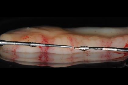 Gestão de tecidos moles em periodontologia e implantologia - conceitos atuais (streaming)