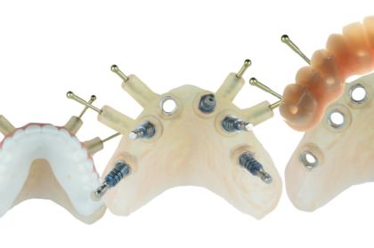 Novas tecnologias em implantologia oral - tendências atuais