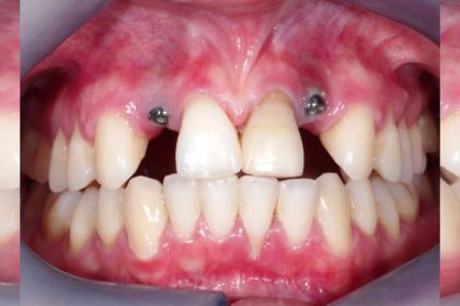 Gestão de insucessos em reabilitação oral implanto-suportada