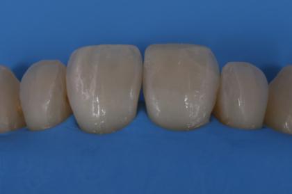 Porquê e como. O isolamento absoluto em medicina dentária