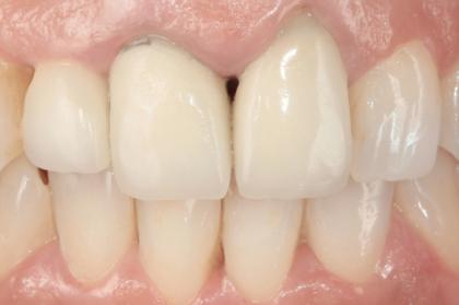 Reabilitação oral: Multidisciplinariedade e retratamento (3º módulo, streaming)