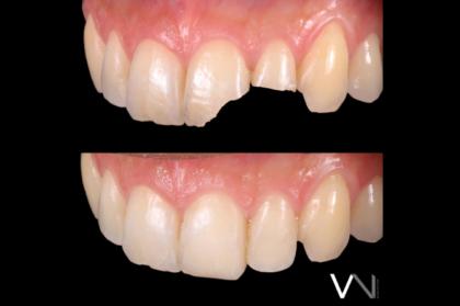 Dentisteria: Adesão ou retenção? (1º módulo, streaming)