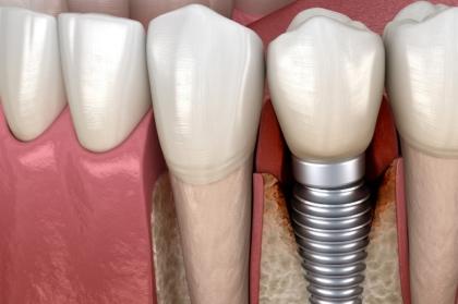 Hands-on peri-implantites com tecnologia de eletrolises - Nobel Biocare